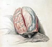 Photo of an illustration by Charles Bell, 'Anatomy of the Brain,' c. 1802