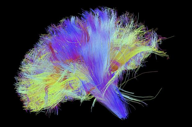 A diffusion spectral imaging (DSI) scan of the bundles of white matter nerve fibers in the brain. The fibers transmit nerve signals among brain regions and between the brain and the spinal cord.