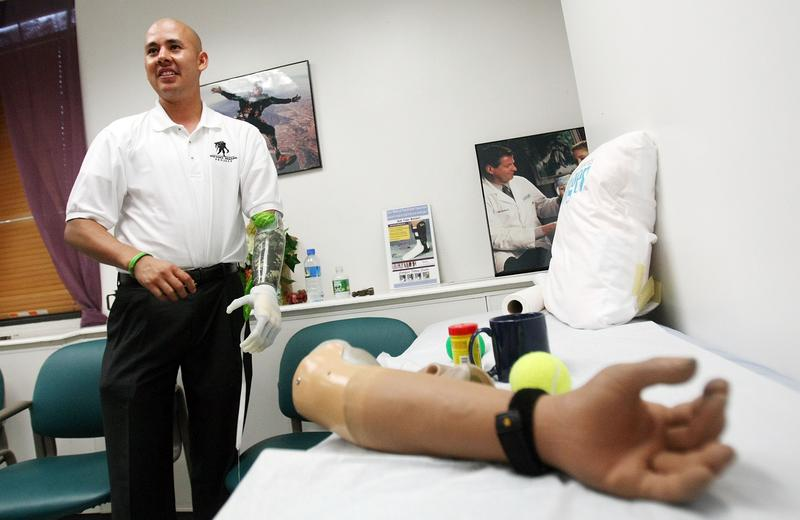 Retired U.S. Army Sergeant Juan Arredondo, a veteran of the war in Iraq, wears the world's first bionic hand with independently moving fingers July 23, 2007 in New York City.
