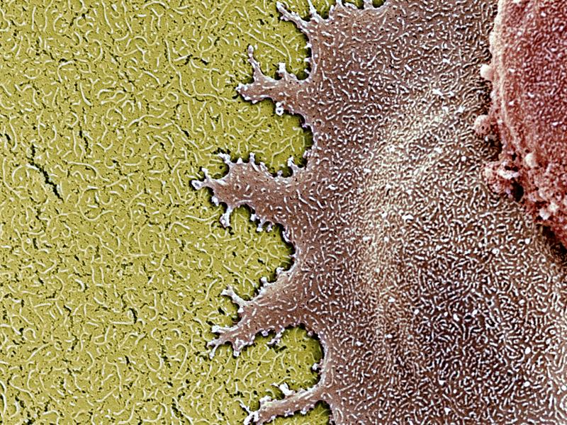 A colored scanning electron micrograph of two human retinal stem cells, shown in brown and red.