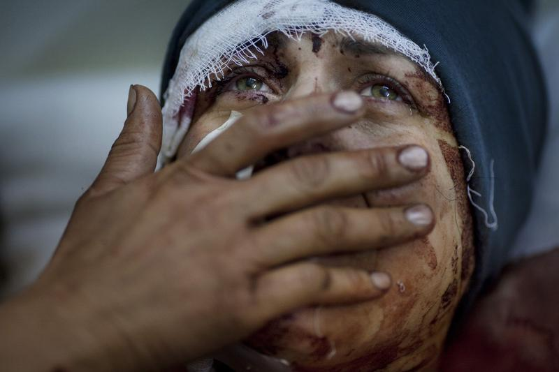 A woman named Aida cries as she recovers from severe injuries after the Syrian army shelled her house in Idlib, northern Syria, March 10, 2012.