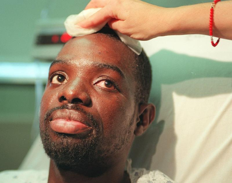 266a3d8e7f Abner Louima at Coney Island Hospital in 1997 as a nurse wipes his forehead